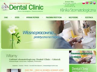 Anna Dental Clinic – Implanty Gdańsk Stomatolog